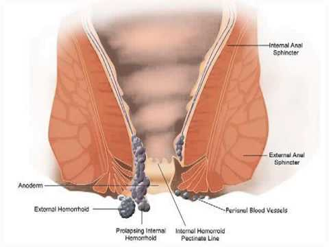 Hemroid Relief